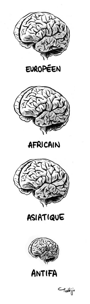 Cerveaux différents